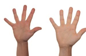हाथों की ये रेखाएं बीमारियों व दुर्घटनाओं के बारे में बताती हैं!